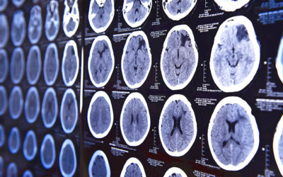 neuroscience content marketing
